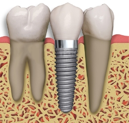 Tulsa Dental Implants