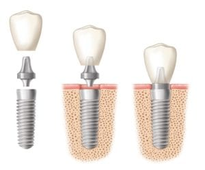 Illustration of dental implants in three parts