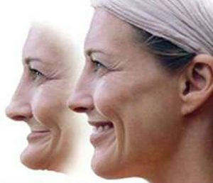An image of a woman before and after facial collapse