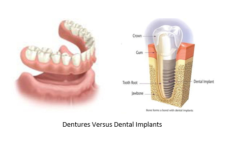illustration of dentures beside a dental implant