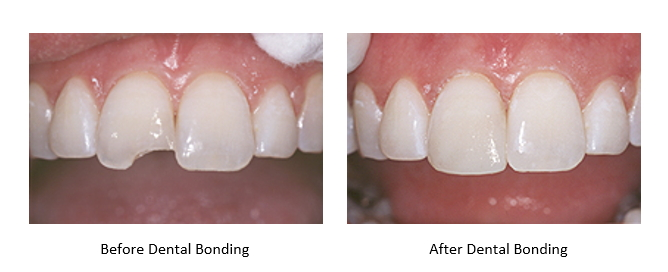 before and after a chipped tooth is repaired with dental bonding