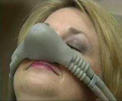 A woman wearing a nose piece for nitrous oxide
