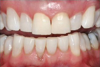 After photo of teeth whitened, not with Zoom, but KöR Deep Bleaching, available at in Tulsa at Hope Restorative Dentistry.