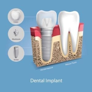 dental implant beside a natural tooth