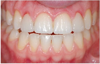 Gums inflamed from poorly done porcelain veneers